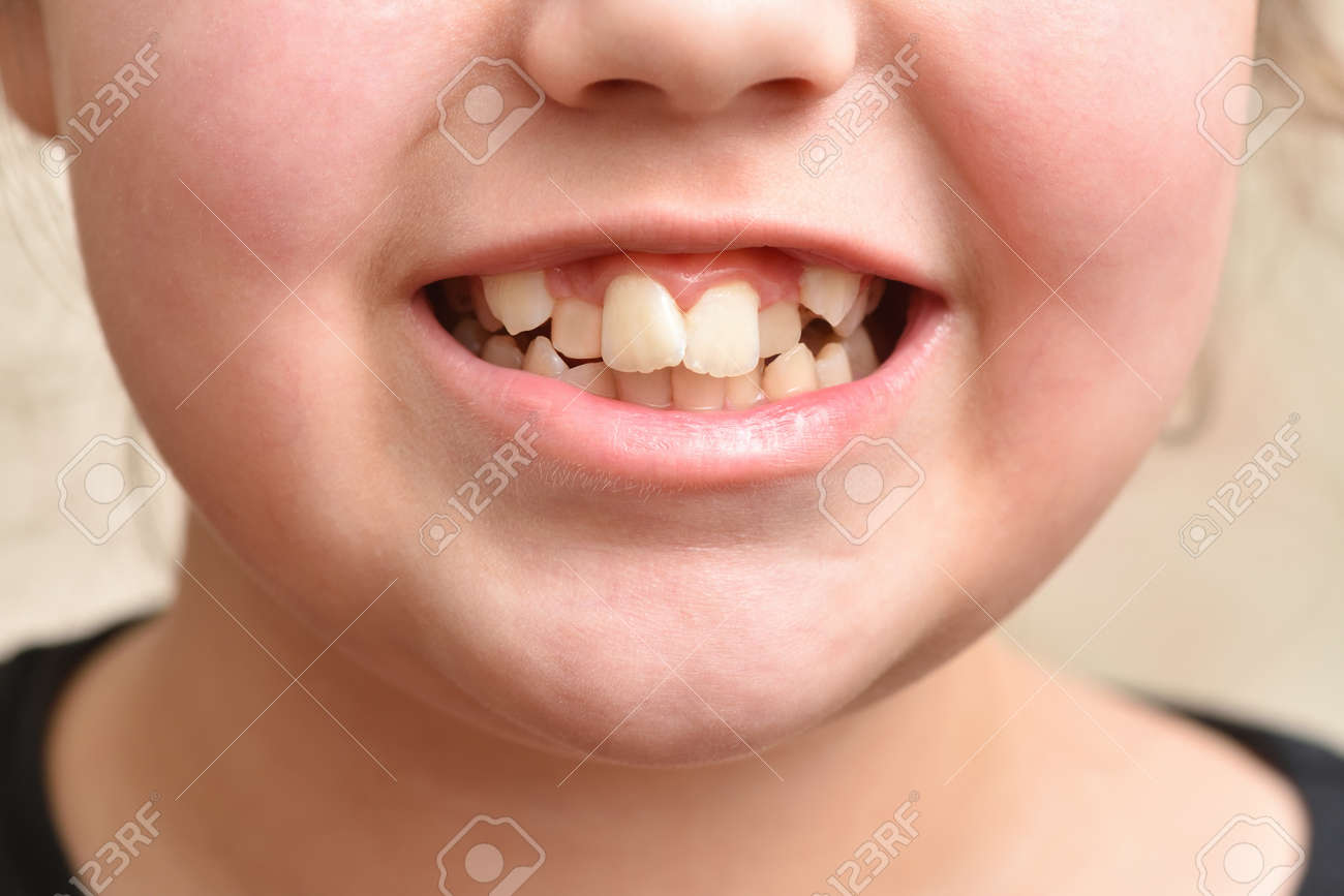 Crooked teeth in a child girl, close up - 169692418