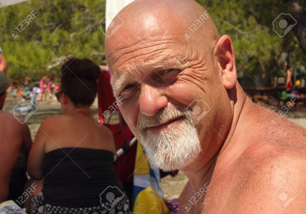 glatze mit bart