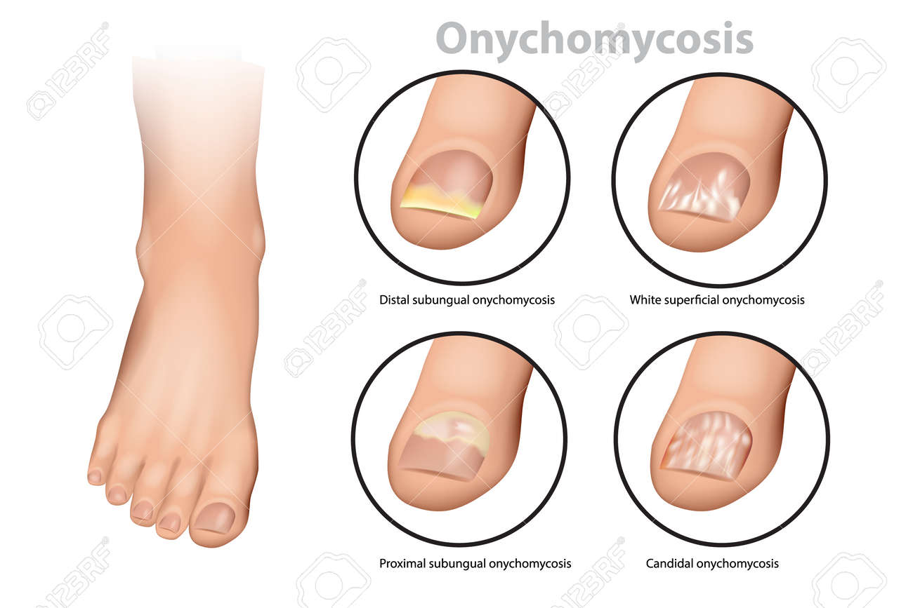 Fungal Nail Infection. Onychomycosis or tinea unguium. Four classic types of onychomycosis - 103086136