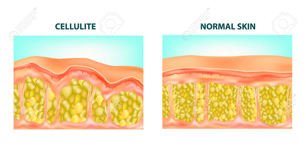 Illustration of a skin cross section of Cellulite formation. Vector diagram. - 103308607