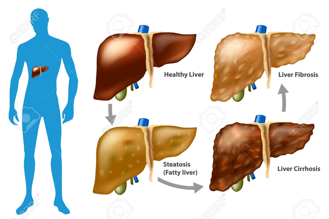 Stages of liver damage. The Progression of Liver Disease. (Steatosis, fibrosis, cirrhosis) - 117869519