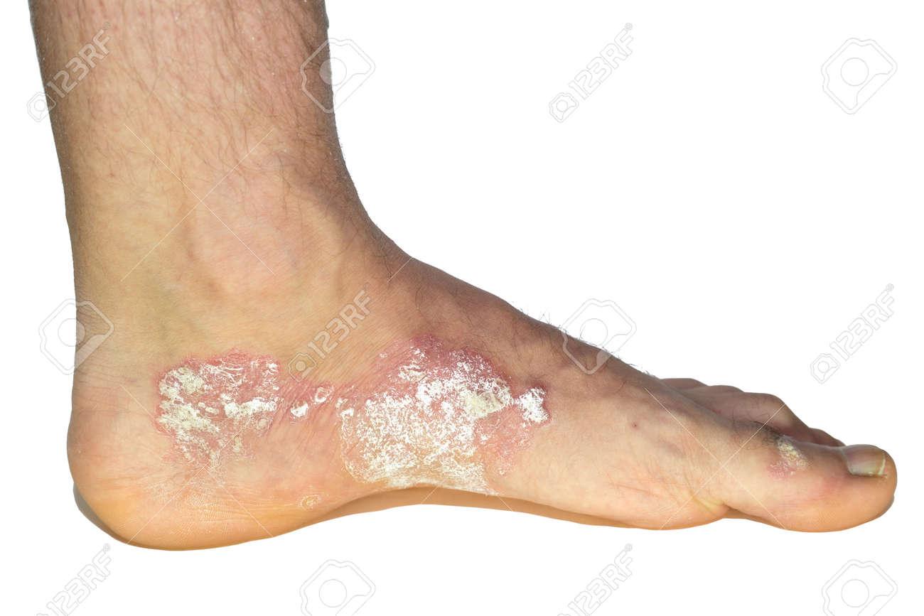 psoriasis sur les pieds