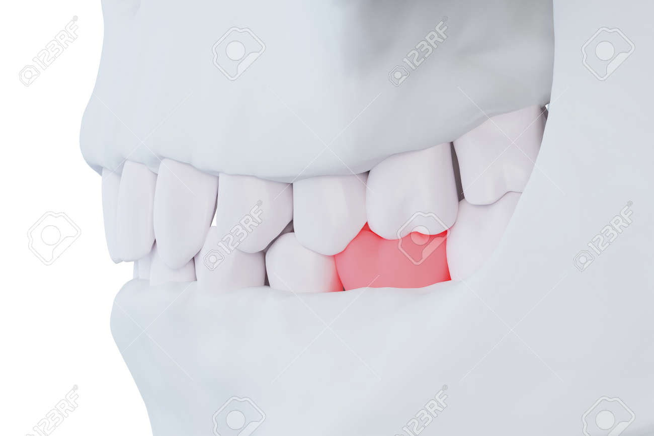 human jaw with a sore tooth, red lower sixth molar tooth, 3d render - 153691472