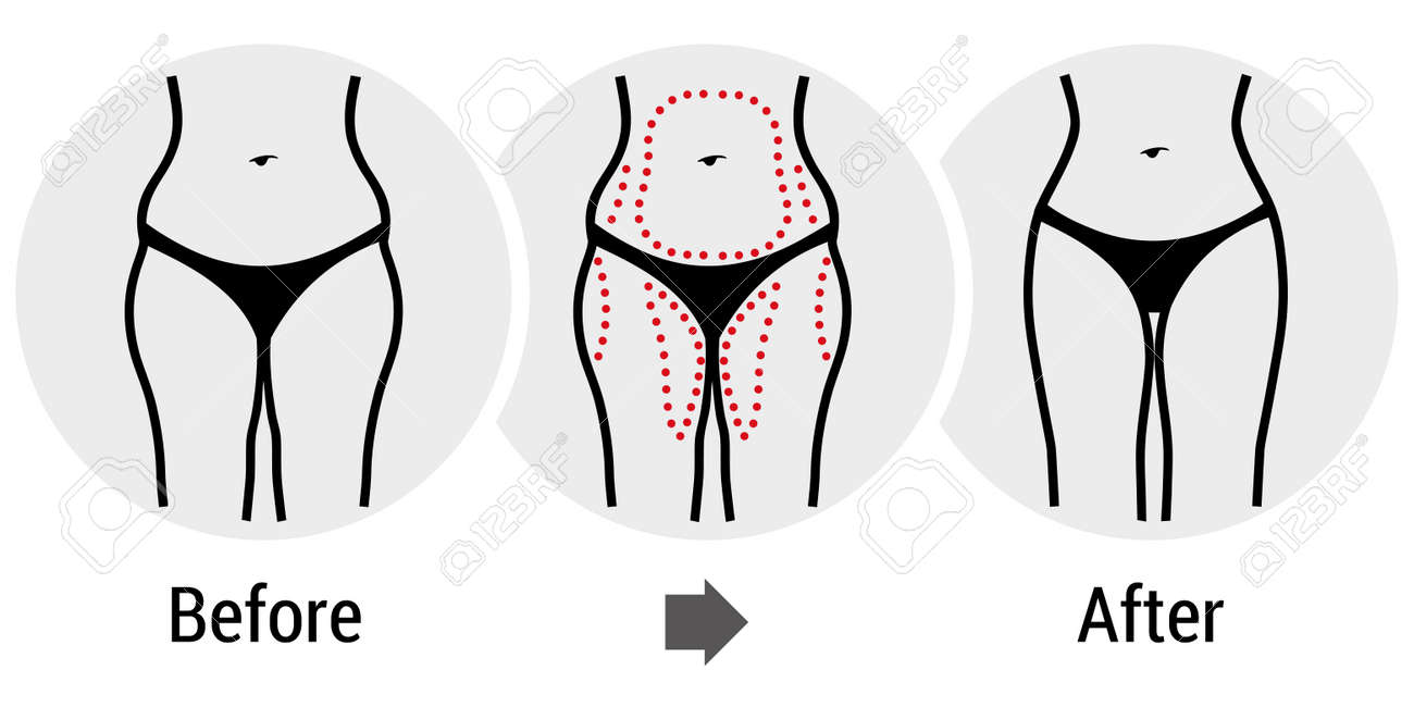 3,502 Plastic Surgery Stock Vector Illustration And Royalty Free ...