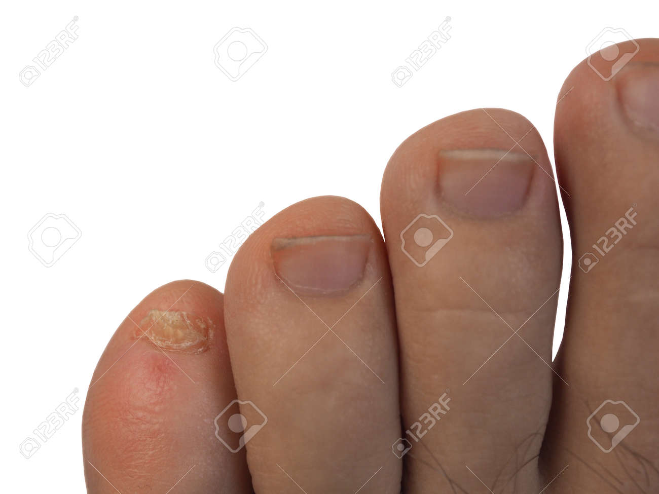 The Problem Pinky Nail Feet On A White Background. Stock Photo ...