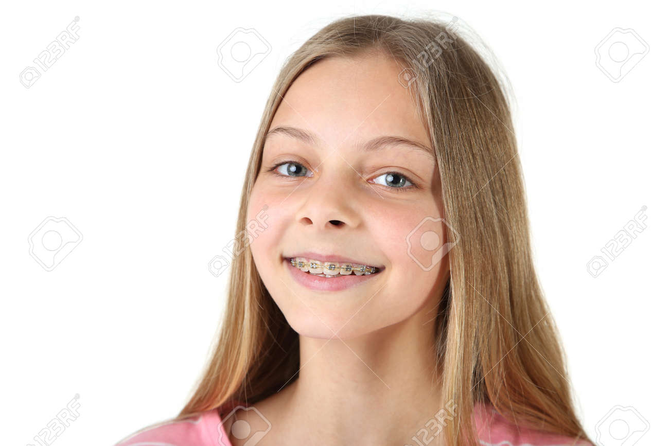 Young smiling girl with dental braces on white background - 108417286