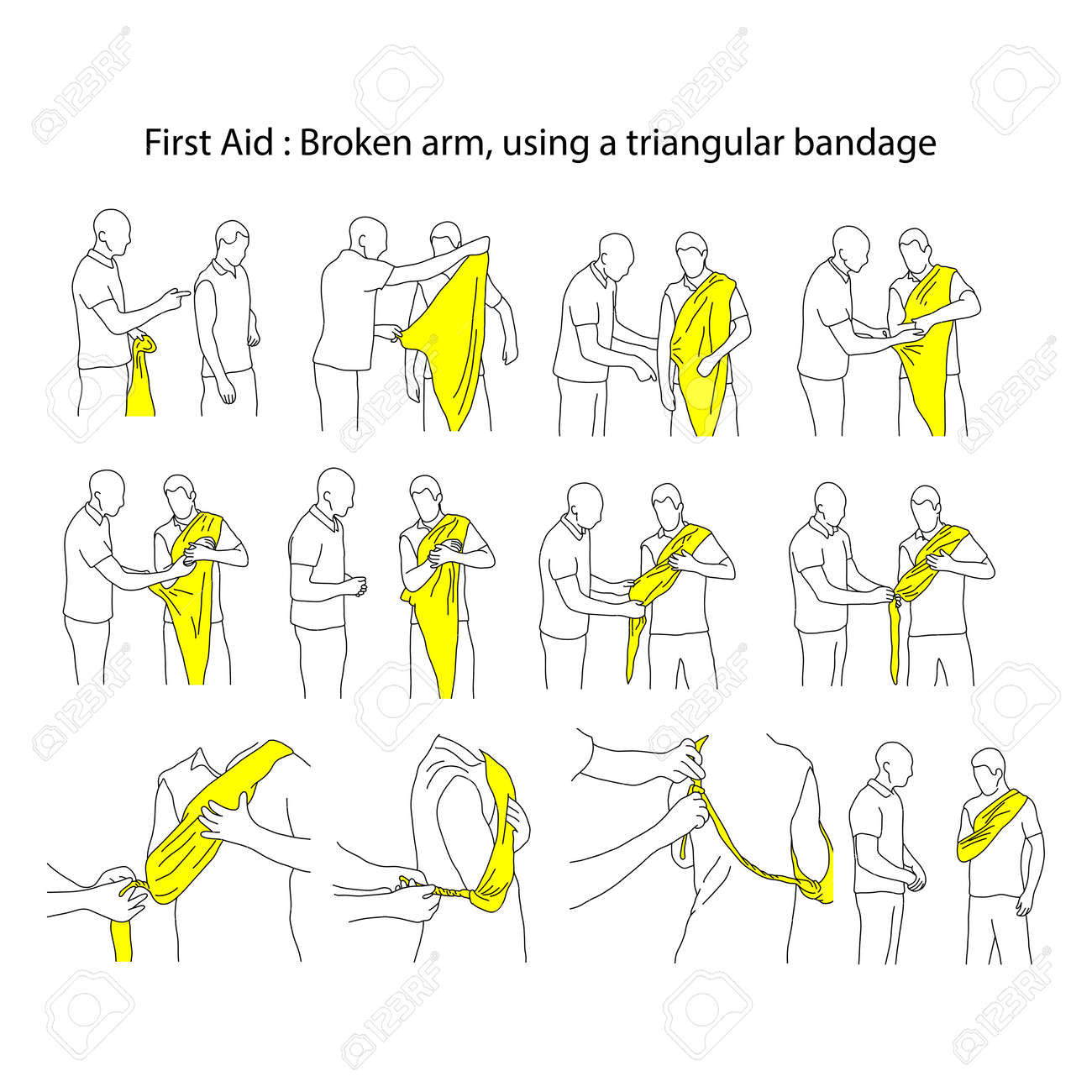 Broken arm using a triangular bandage vector illustration outline sketch hand drawn with black lines isolated on white background. First aid process. - 92611329