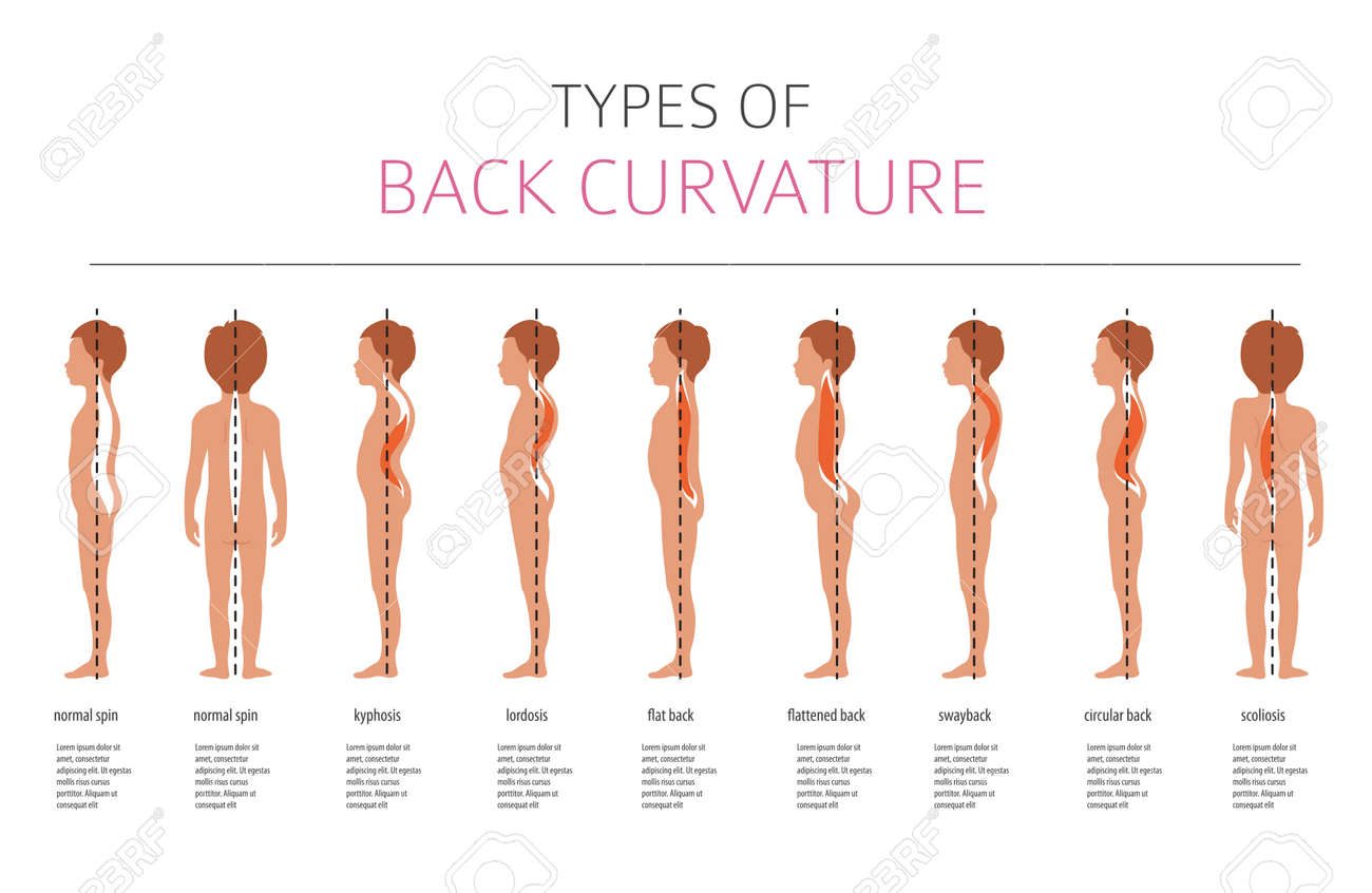 Types of back curvature. Medical desease infographic. Vector illustration - 101101144