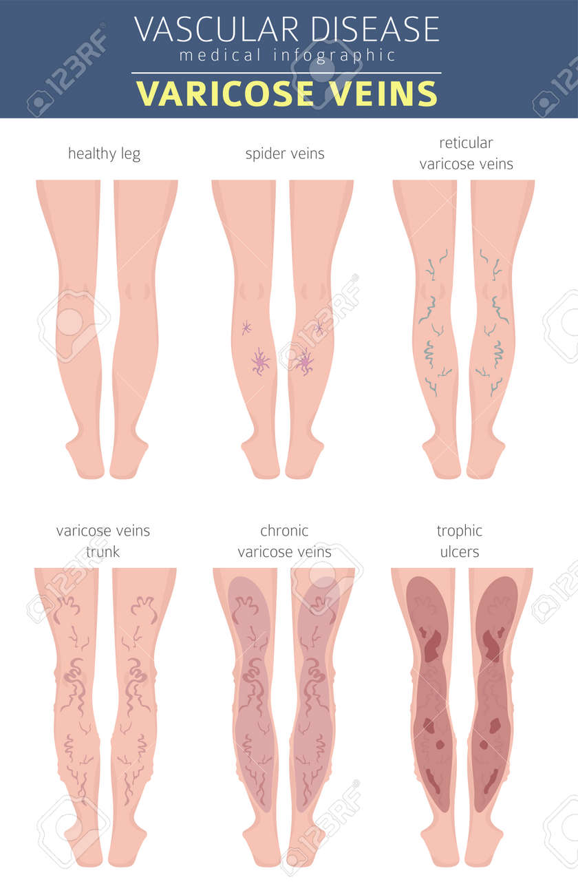 spider veins symptoms