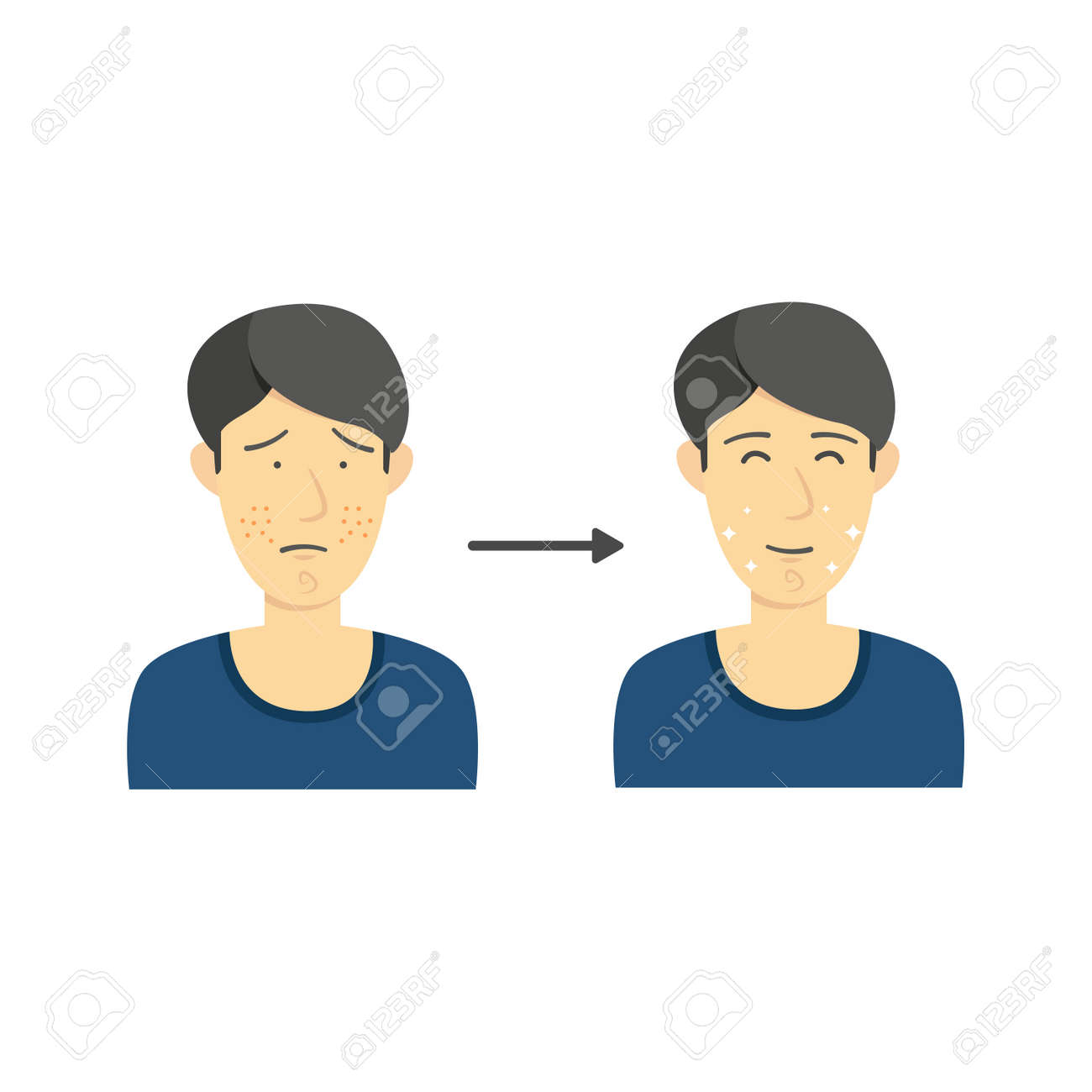black hair male from acne face to clean face without acne diagram  infographic illustration stock vector