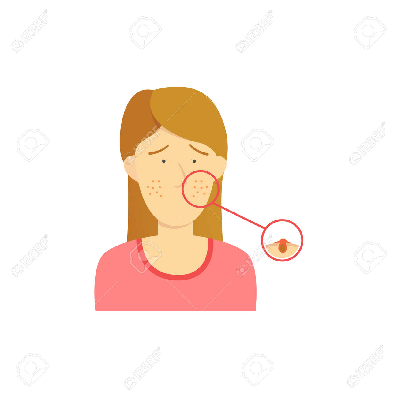 brown hair girl woman with acne diagram detail on face illustration stock  vector - 114890303