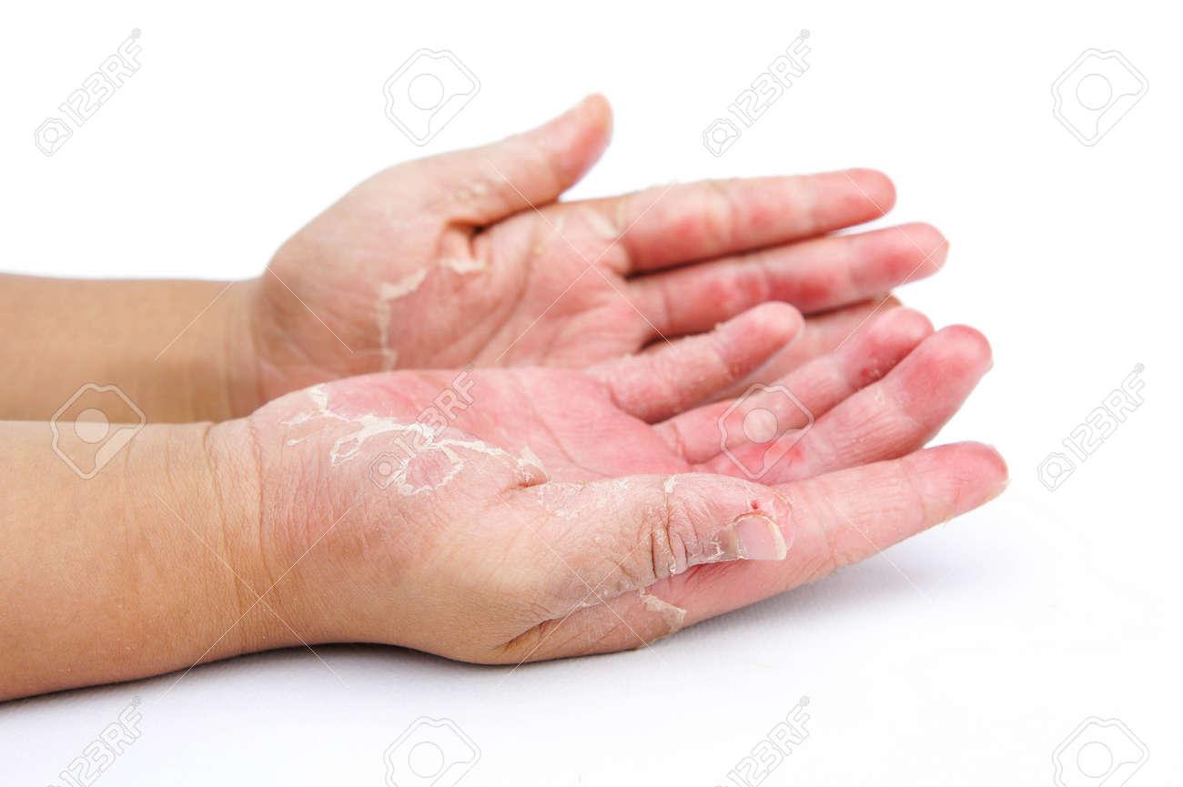 infecciones fúngicas y por hongos de la piel