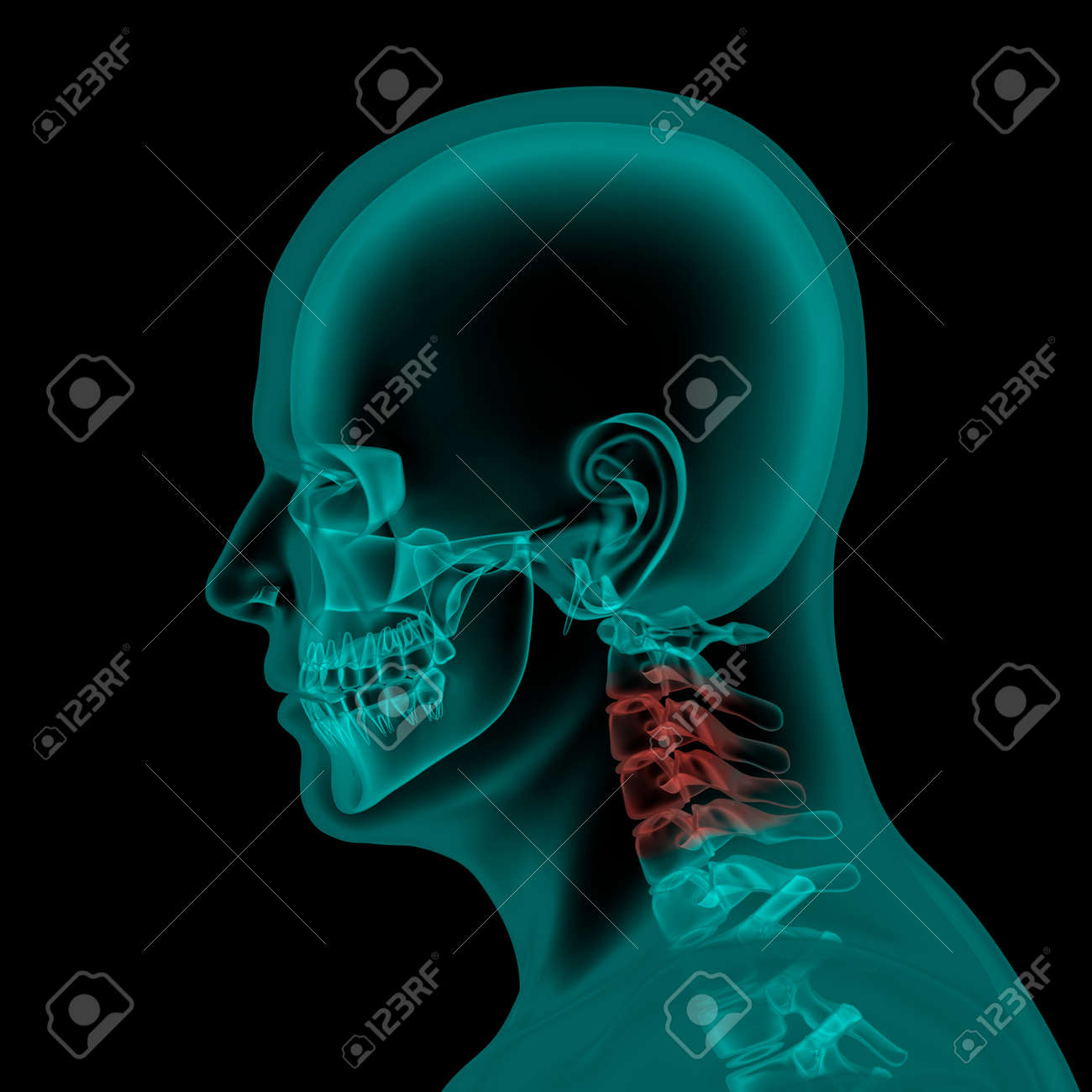 Lateral X-ray Scan View Of Human Skull And Neck Stock Photo, Picture ...