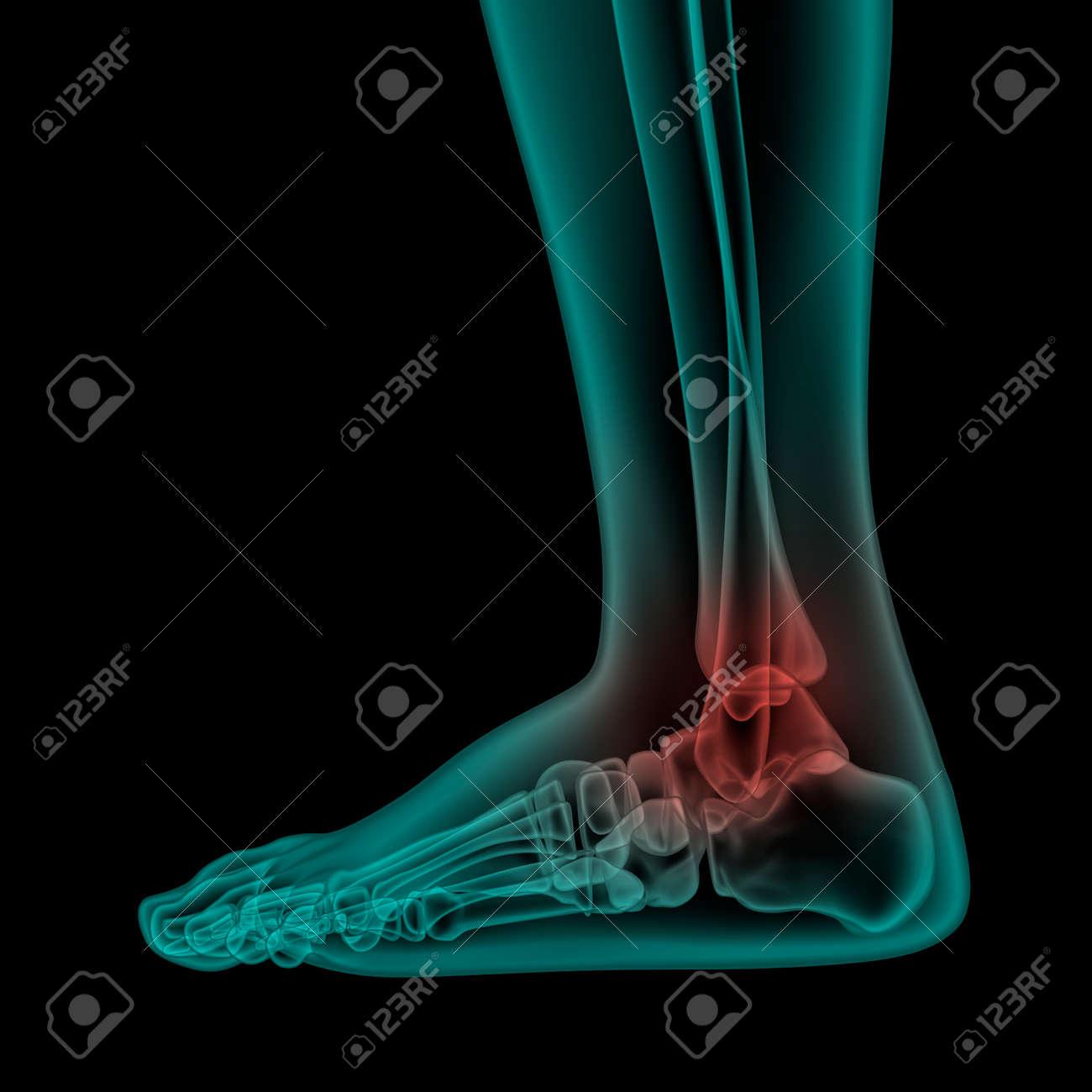 Seite X-ray-Scan Sicht Der Menschlichen Schmerzhaften Fuß Und ...