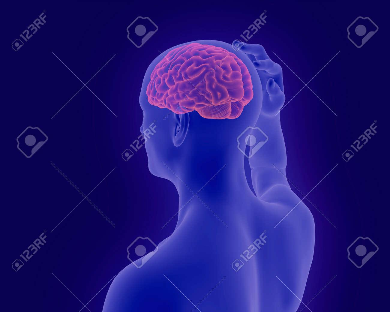 Kopfschmerzen X-ray-Scan Des Menschlichen Körpers Mit Sichtbar ...