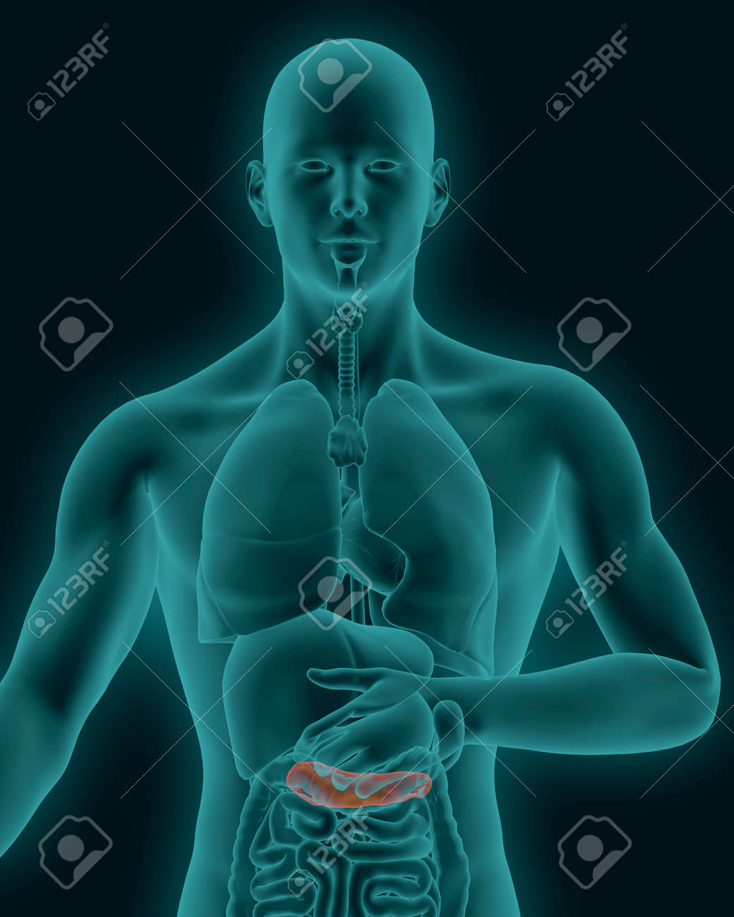 Anatomy Of Human Inflamed Pancreas With Digestive Organs In X-ray ...