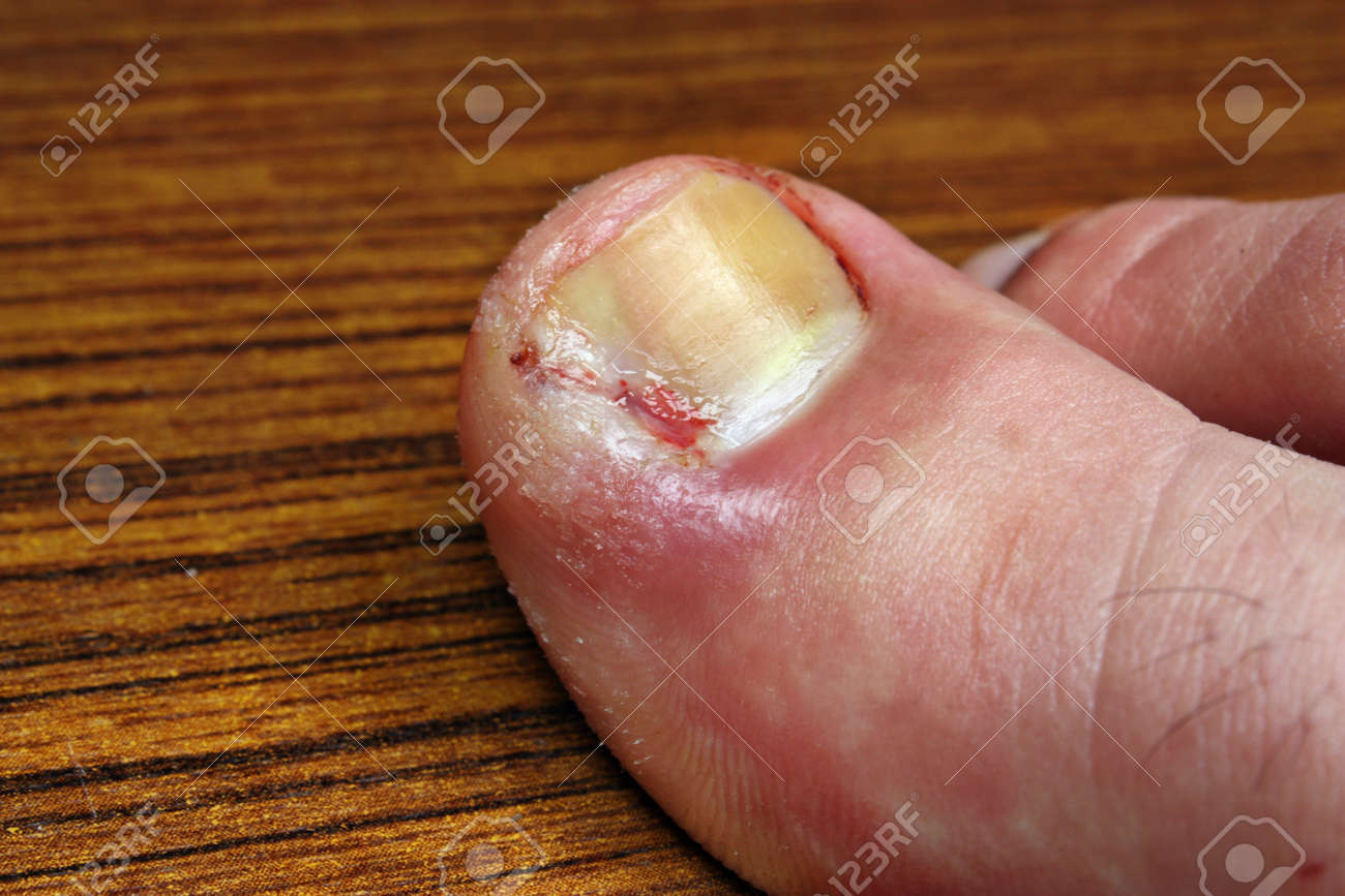 Ingrown Toenail Disease Blood Wound Infection Bacteria Finger ...