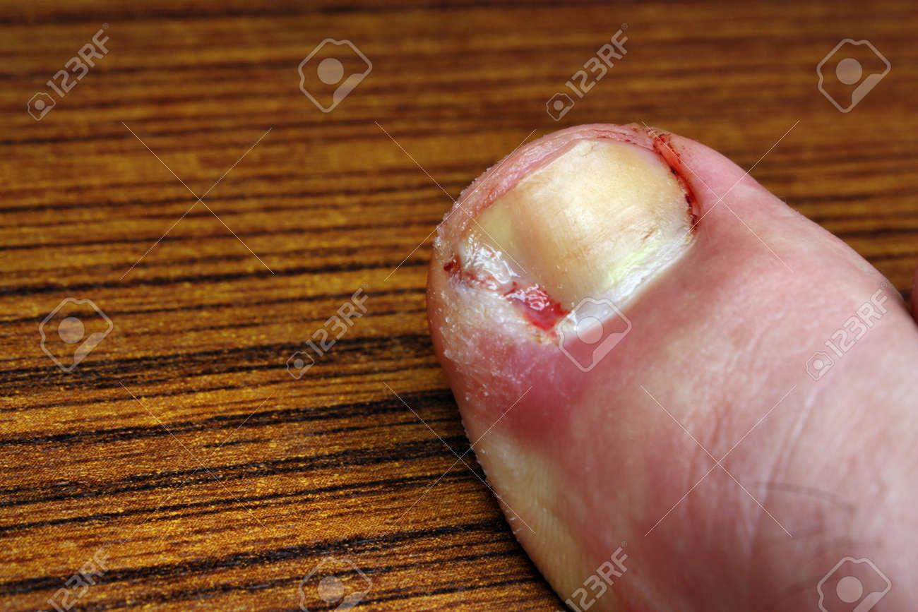 Ingrown toenail disease blood wound infection bacteria finger