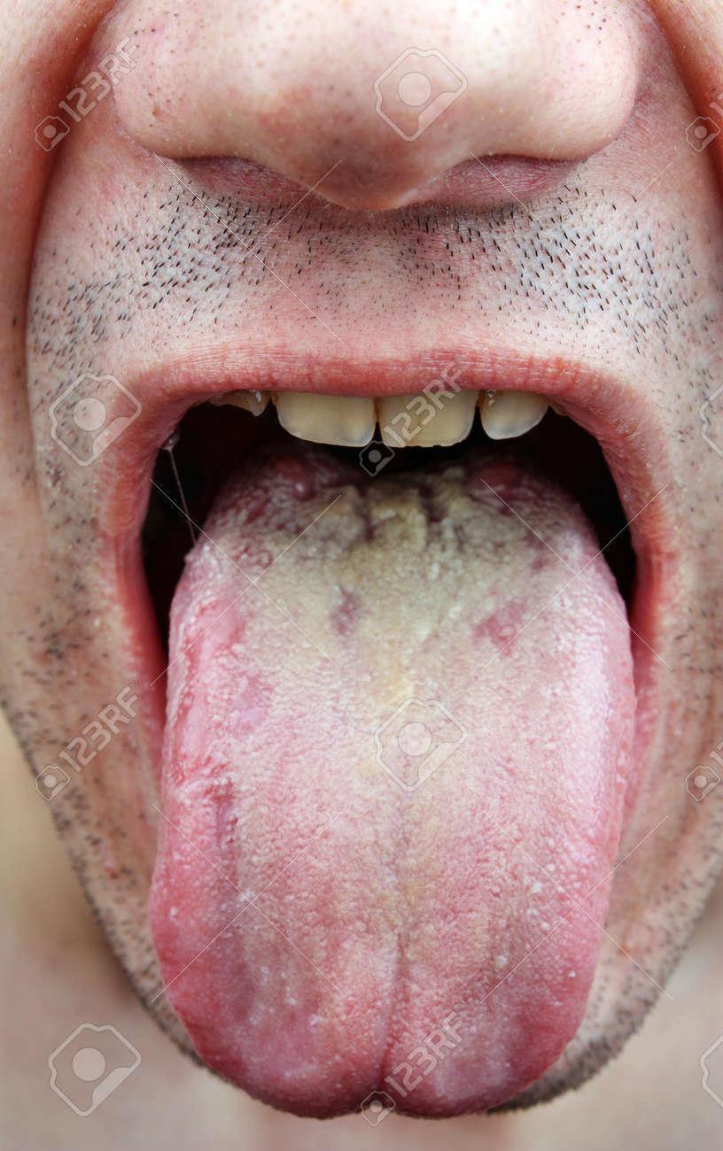 Lengua Infección De Enfermedades, De La Garganta A Un Hombre Fotos ...