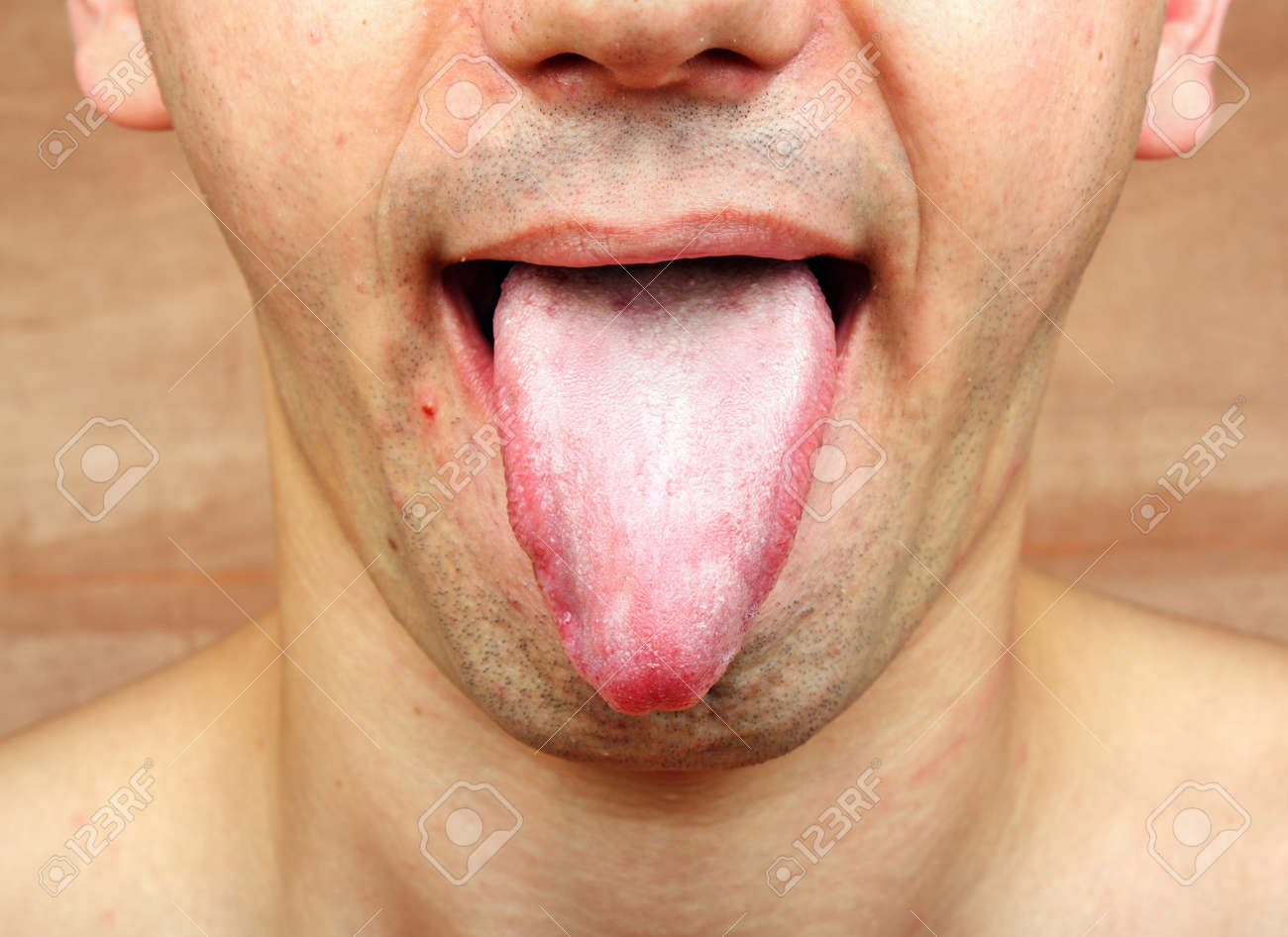 pictures of mouth and tongue disease entusacom - 800×450