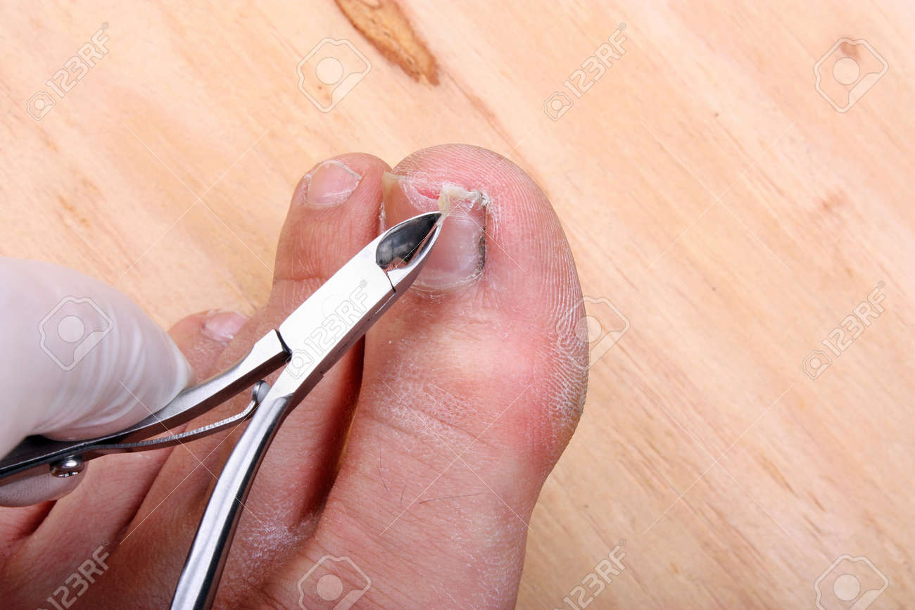 Surgery On A Broken Toe Nail A Man Stock Photo, Picture And Royalty ...