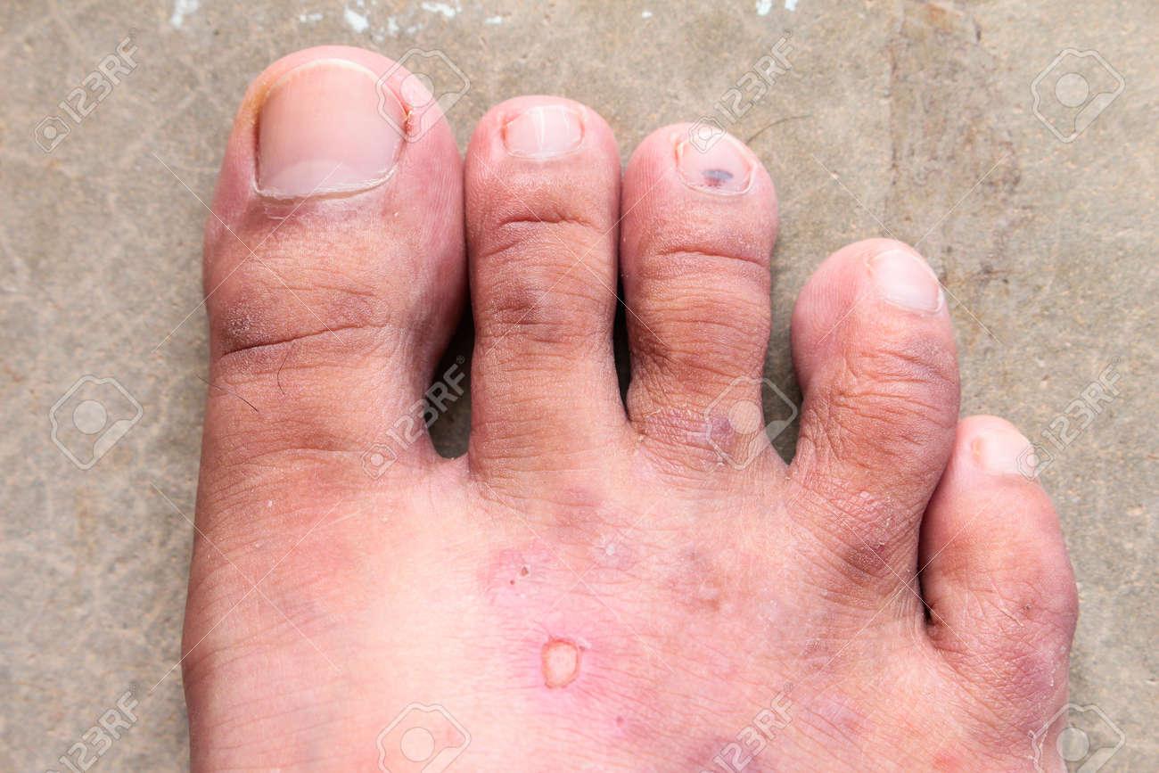 champignon au pied