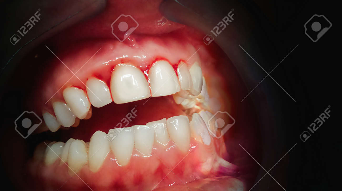 Mouth with bleeding gums on a dark background. Close up. - 94975878
