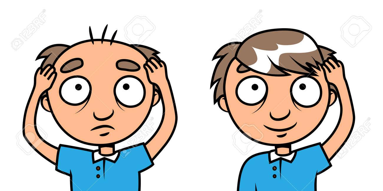 Cartoon ilustración vectorial de un hombre calvo con cabello nuevo Foto de  archivo - 22528653 2ca57b862b5c
