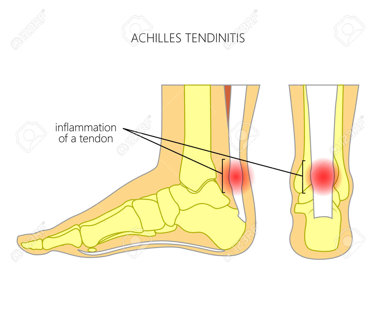 Illustration of Skeletal ankle (side view and back view) with tendinitis of Achilles tendon. Used: Gradient, transparence, blend mode. - 75307081