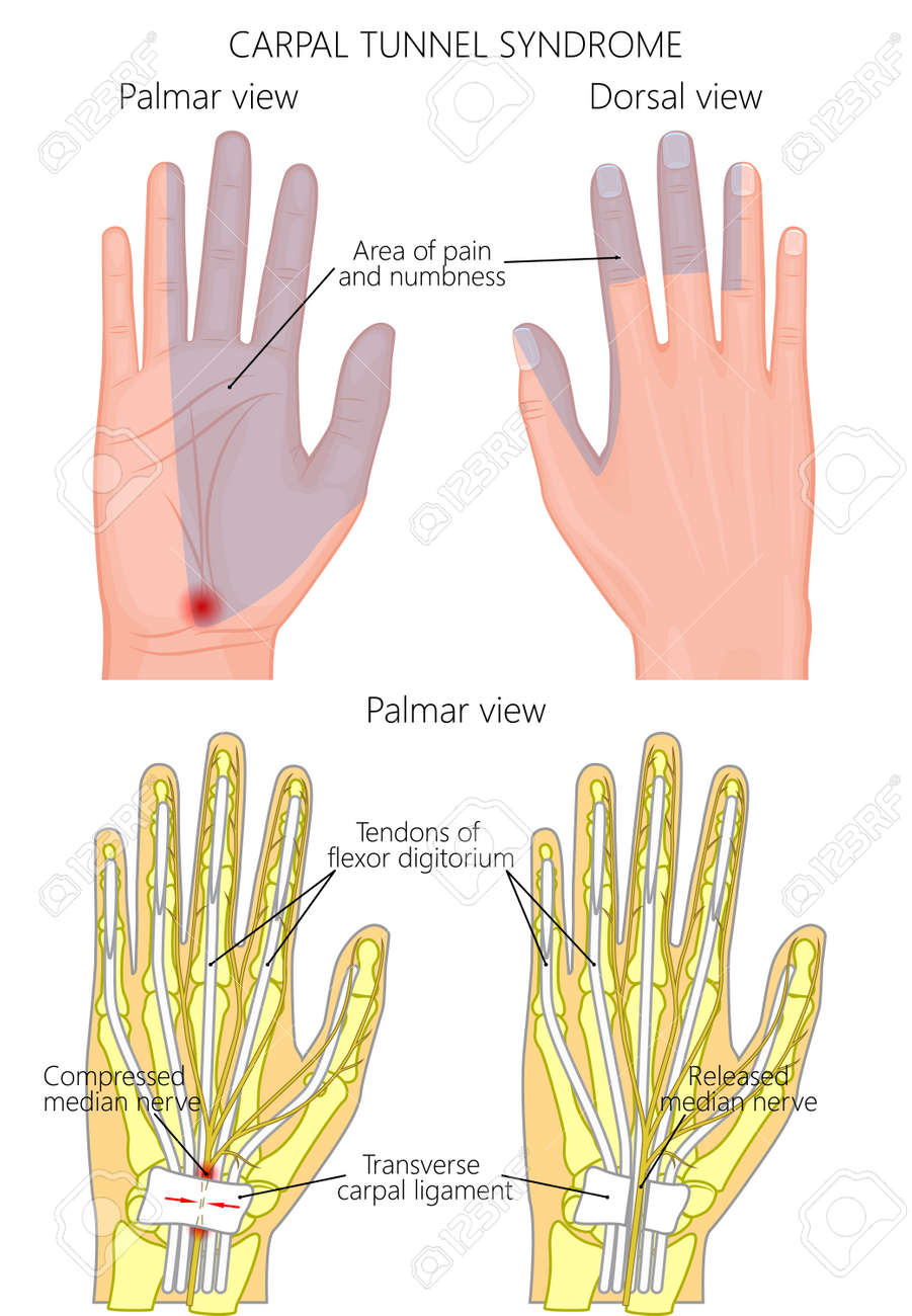 Illustration Of The Carpal Tunnel Syndrome Problem And Surgery ...