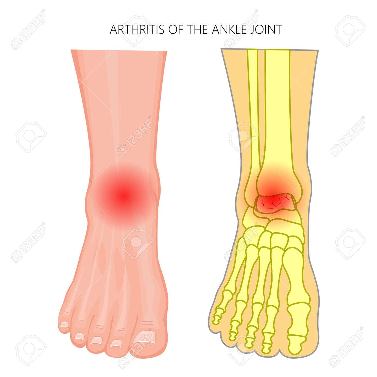 Atemberaubend Anatomie Des Fußes Und Des Knöchels Knochen Galerie ...