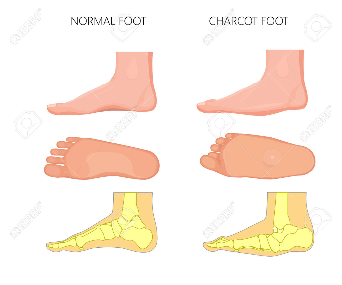 Illustration Of Normal And Rocker Bottom Charcot Foot (soles ...