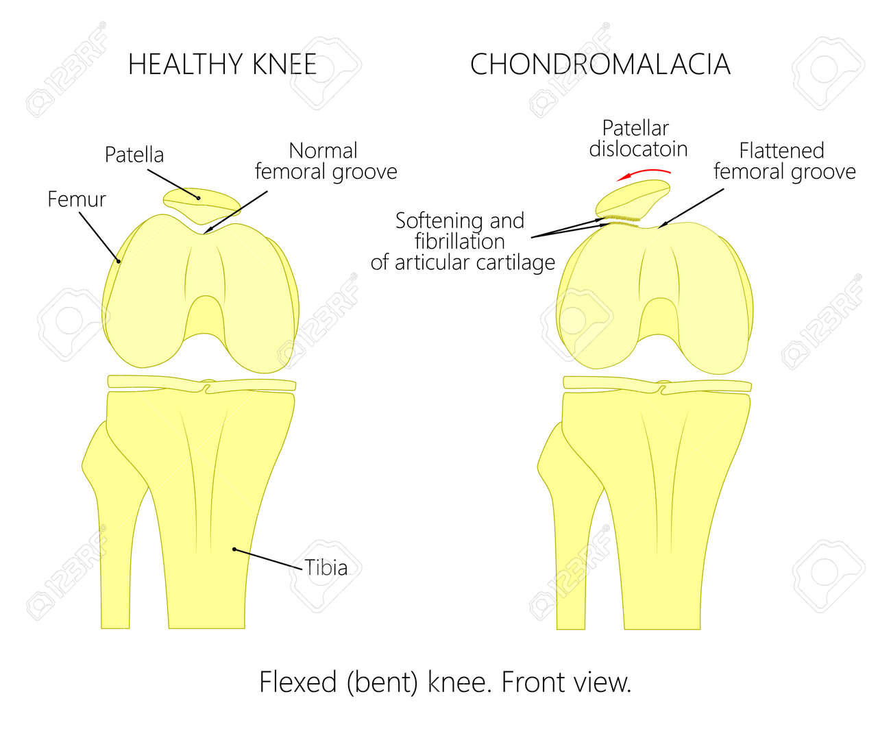 Illustration diagram of normal knee joint and a knee with illustration diagram of normal knee joint and a knee with chondromalacia patella flexed pooptronica