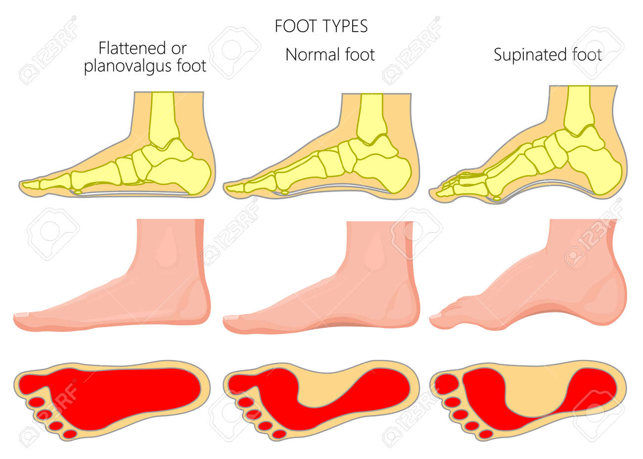 Vector illustration of the foot types. External and skeletal views of medial side of an ankle with footprint. - 89407961