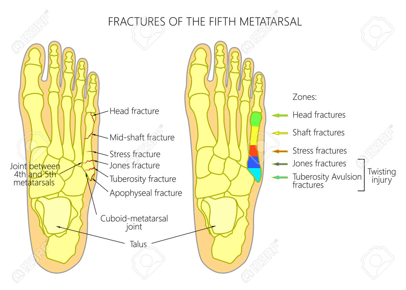 Ilustración (diagrama) De Las Fracturas Del Quinto Metatarsiano ...