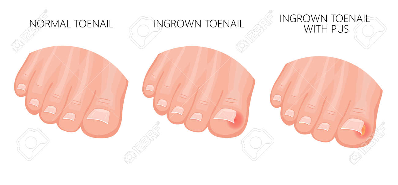 Vector Illustration Of A Healthy Foot, Foot With Ingrown Nail ...
