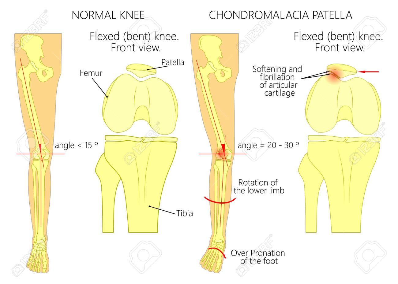 Ziemlich Diagramm Der Knie Muskeln Und Sehnen Ideen - Physiologie ...