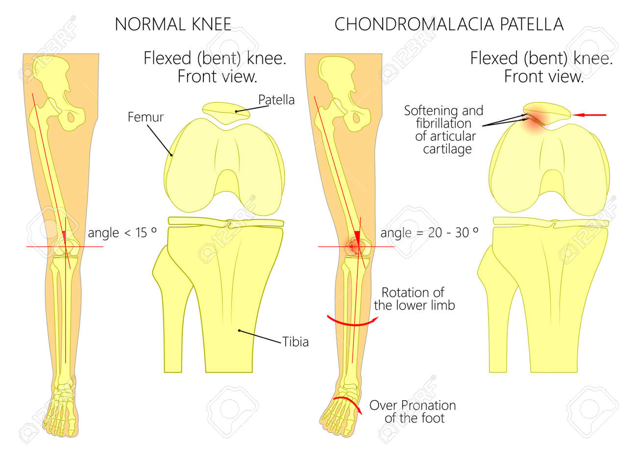 Ilustración (diagrama) De La Pierna Normal Con Una Rodilla Sana Y ...