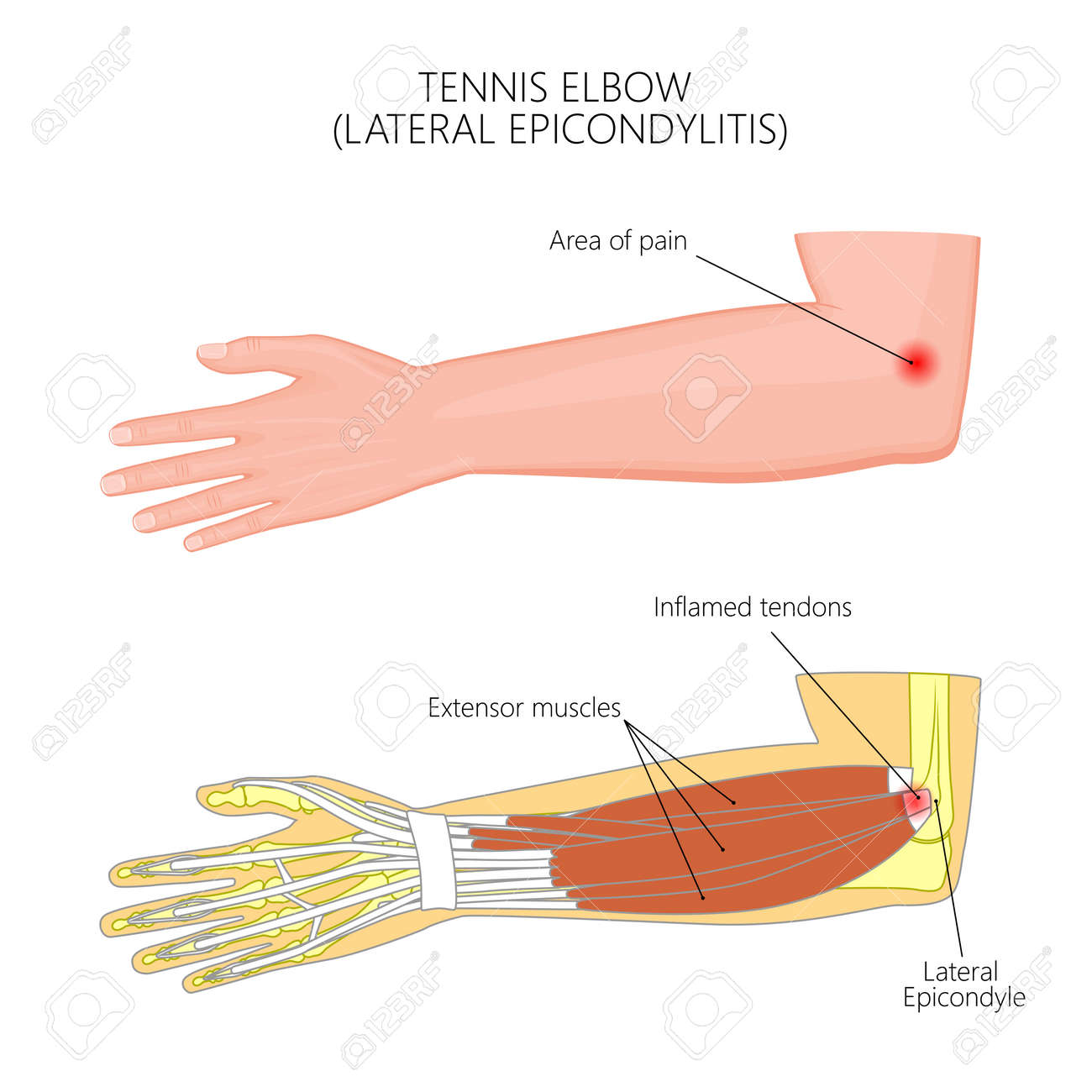 Illustration Of Lateral Epicondylitis Or Tennis Elbow. Used ...