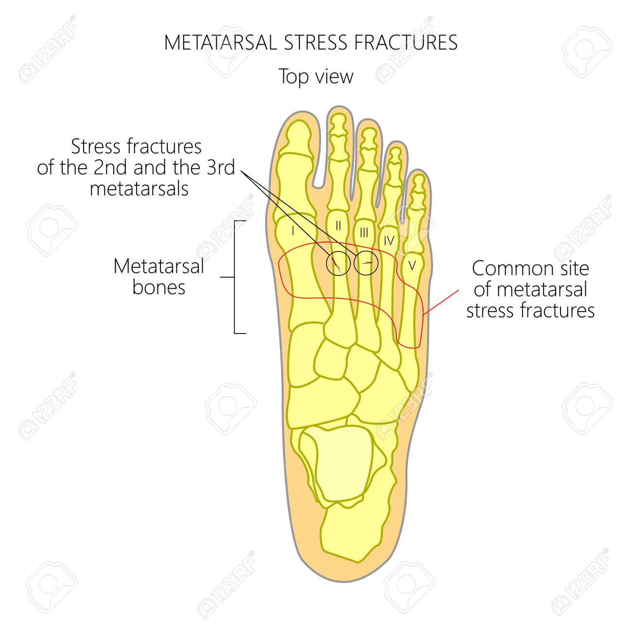 Ilustración (Diagrama) De Las Fracturas Por Estrés Metatarsiano En ...