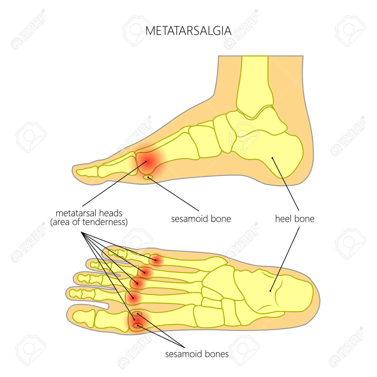 vector - vector diagram of forefoot pain, metatarsalgia symptom, tenderness  in the balls of metatarsal bones of the foot  used: gradient, transparency
