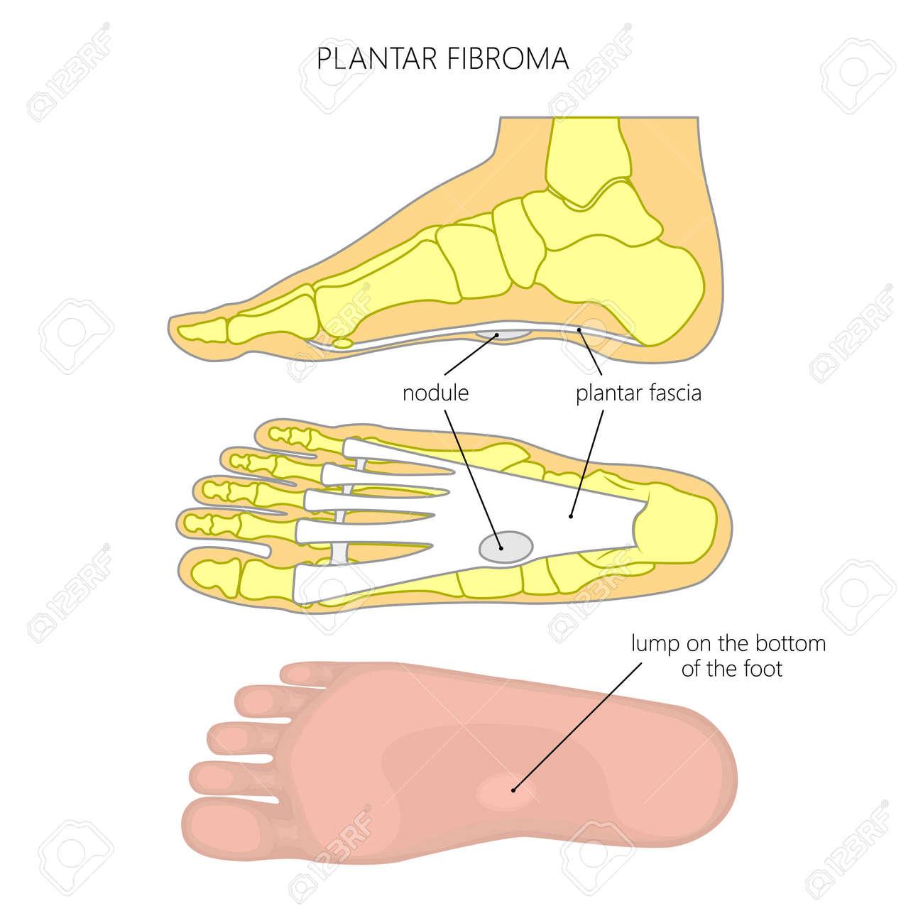 Vektordiagramm Des Plantarfibroms Oder Der Fibromatose. Tumor An Der ...