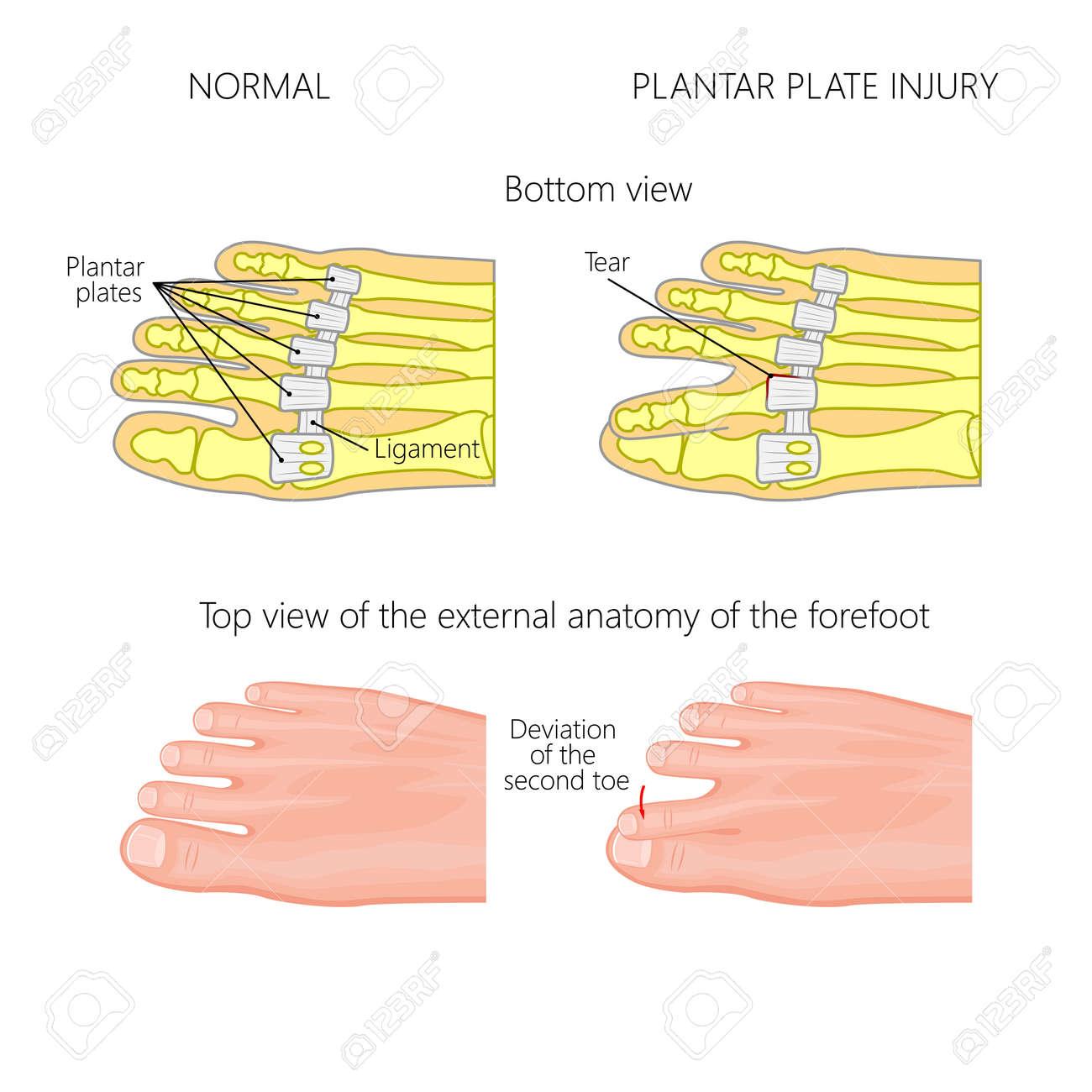 Vector Illustration (diagram). Deviation Of The Toe. Mechanism ...