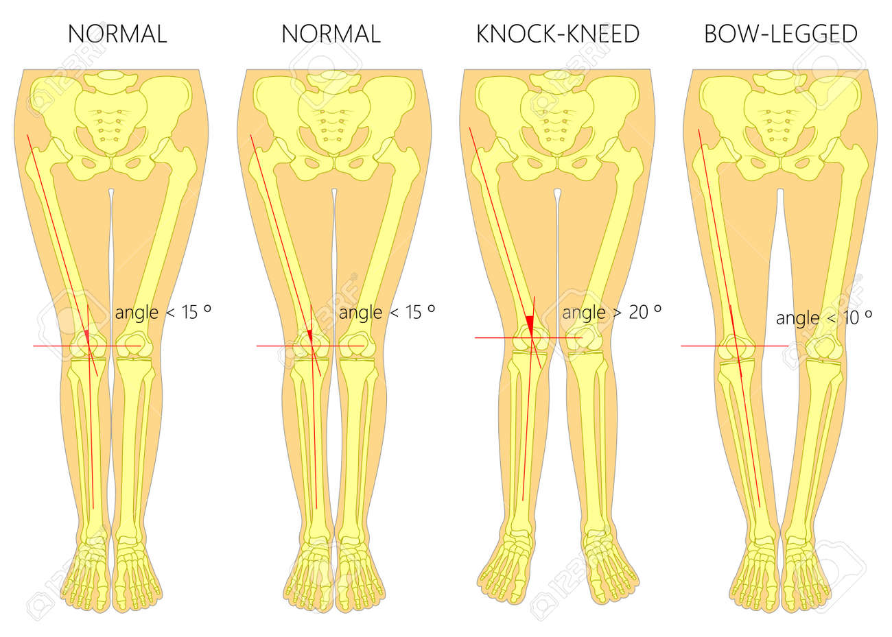 vector vector diagram shapes of the legs normal and curved legs knock knees bowed legs genu valgum and genu varum