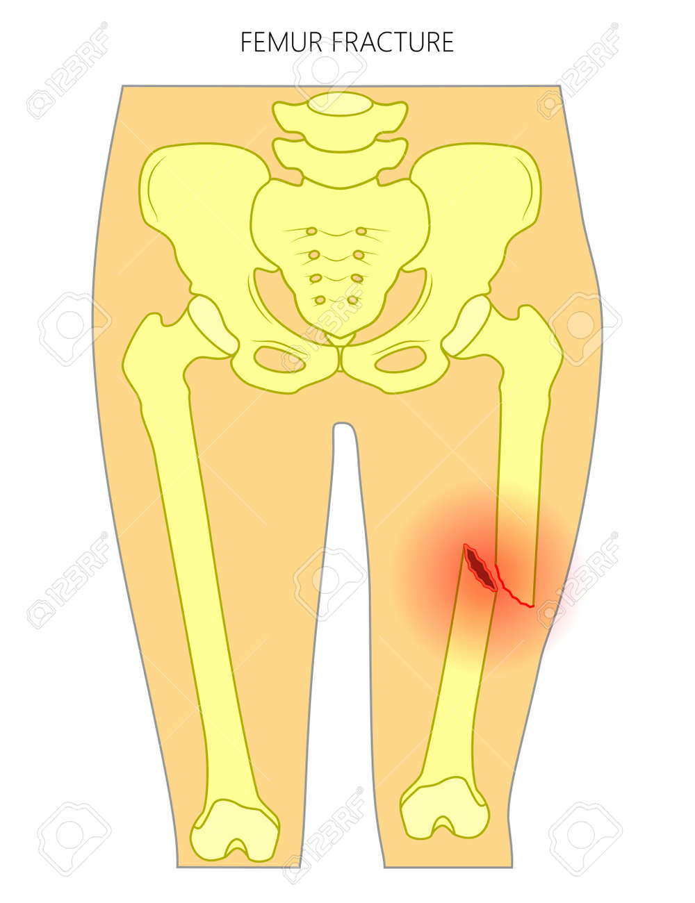 Schön Anatomy And Physiology Of Femur Fracture Ideen - Menschliche ...