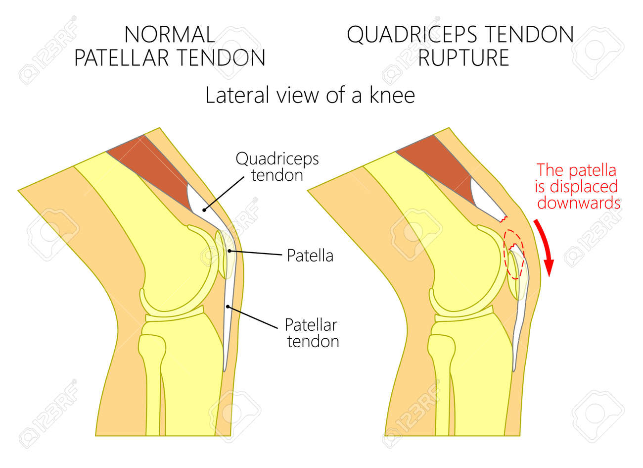 Vector illustration of a healthy knee joint and an unhealthy vector vector illustration of a healthy knee joint and an unhealthy knee with a quadriceps tendon rupture problem anatomy of the human knee ccuart Images