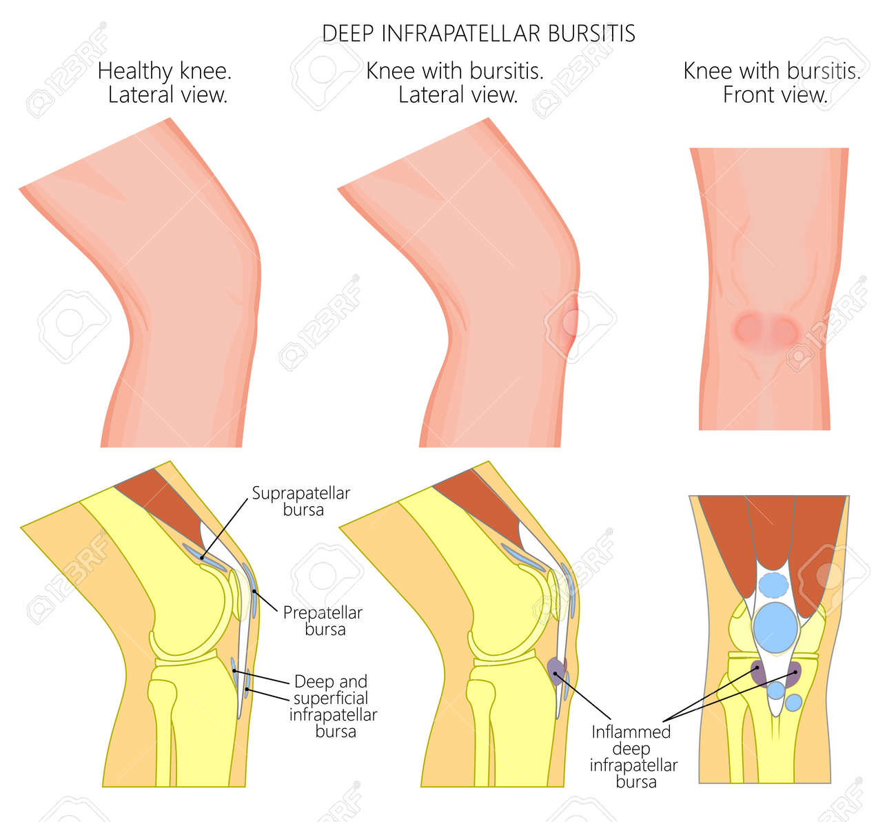 Vector illustration of a healthy knee and unhealthy knee with vector vector illustration of a healthy knee and unhealthy knee with deep infrapatellar bursitis or clergymans knee anatomy of human knee joint ccuart Gallery