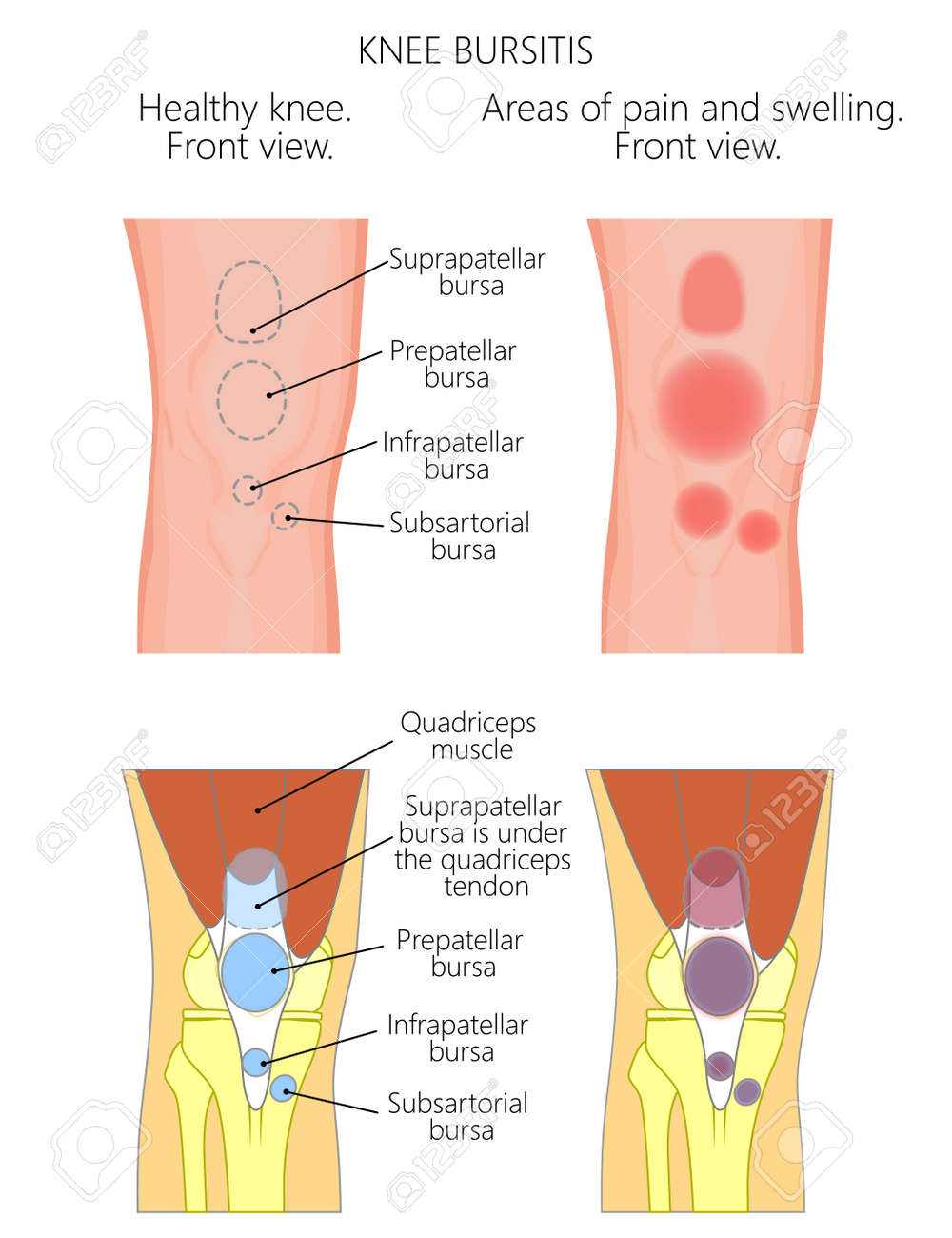 Vector illustration of a healthy knee unhealthy knee with bursitis vector vector illustration of a healthy knee unhealthy knee with bursitis and areas of pain most common types of it anatomy of human knee anterior ccuart Gallery