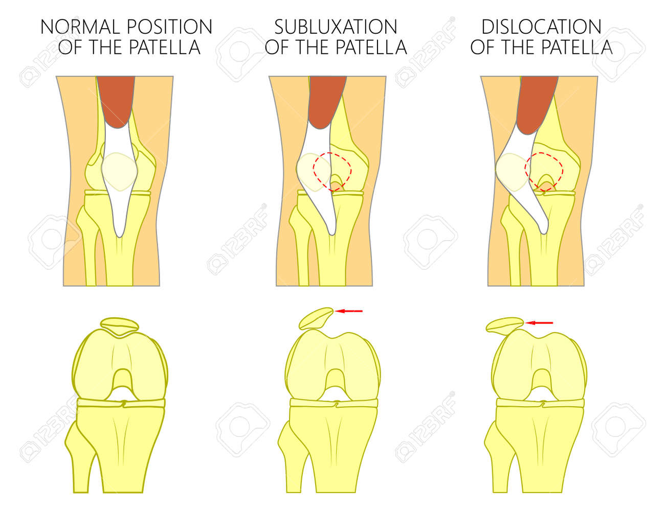 Vector Illustration Of A Healthy Human Knee Joint And Unhealthy ...