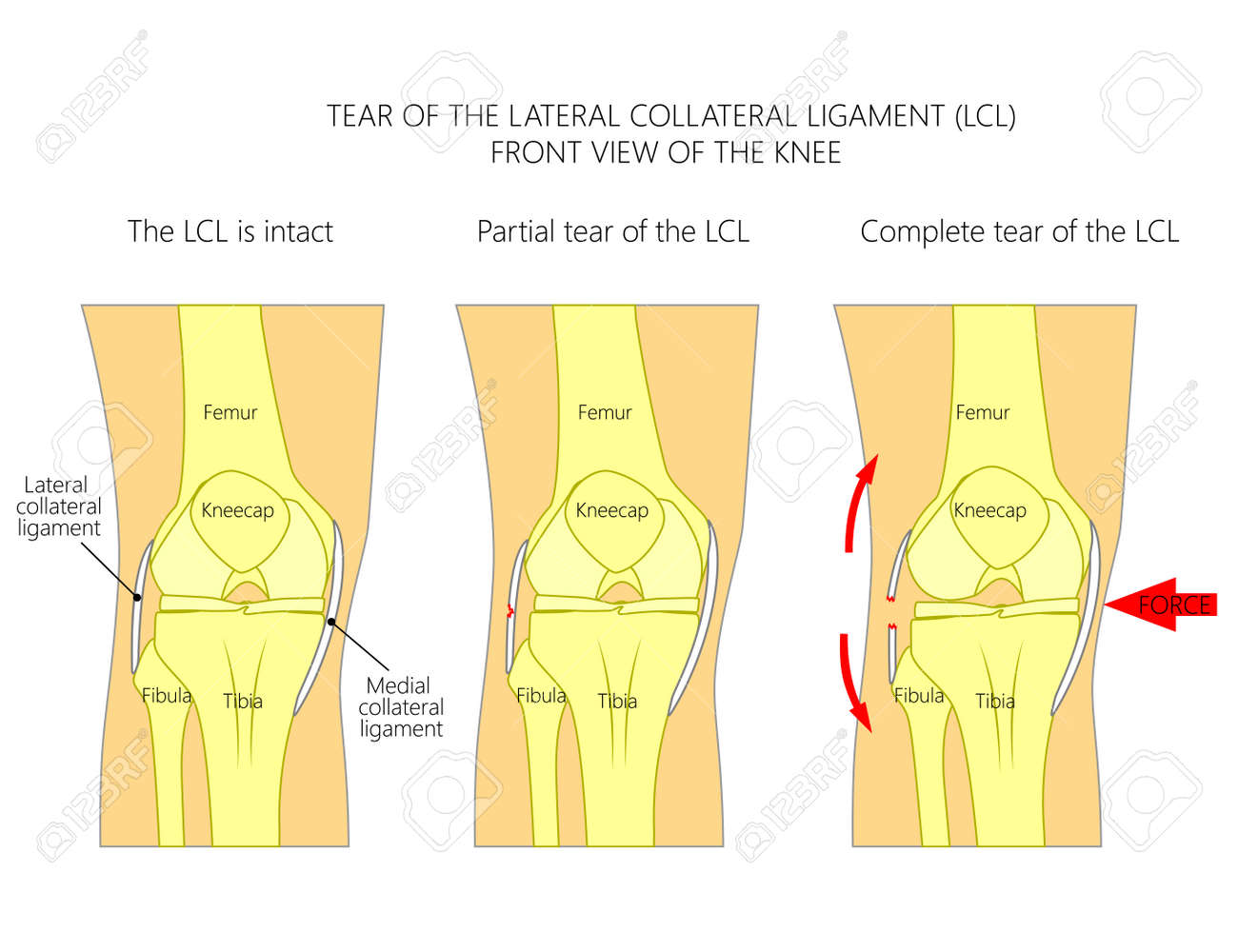 Vector illustration anatomy of a knee joint with healthy ligaments vector vector illustration anatomy of a knee joint with healthy ligaments and sprain tear rupture of lateral collateral ligament ccuart Image collections